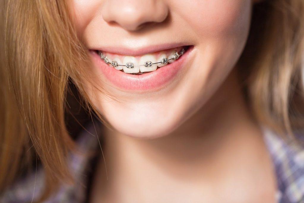 Niềng răng mắc cài kim loại - Ảnh 1