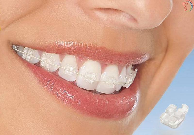 Niềng răng mắc cài sứ - Ảnh 2