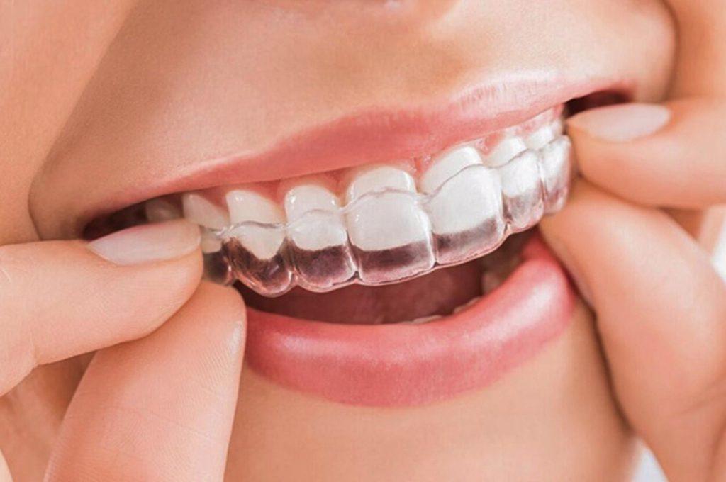 Niềng răng mắc cài trong suốt - Ảnh 5