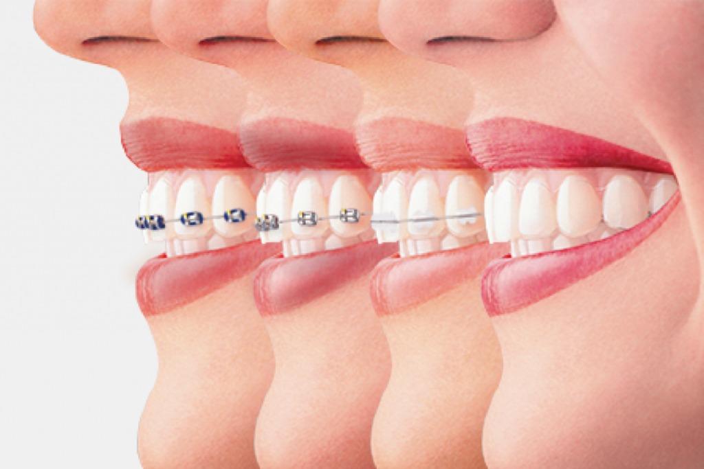 Niềng răng là gì? - Ảnh 1