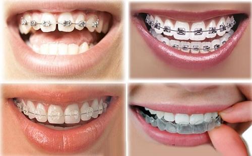 Niềng răng cho người lớn như thế nào so với trẻ em? - Ảnh 3