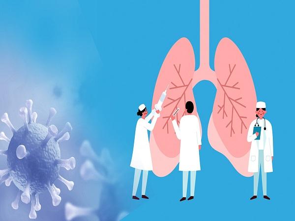 Covid-19 và phổi: Trường hợp nặng - Ảnh 3