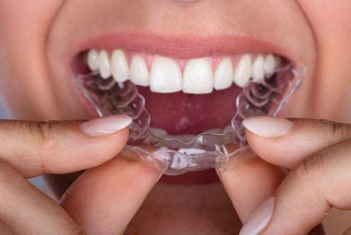 Top những câu hỏi thường gặp khi niềng răng trong suốt