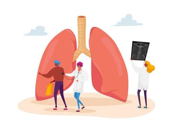 Covid-19 và phổi: Các trường hợp nhẹ và trung bình - Ảnh 2