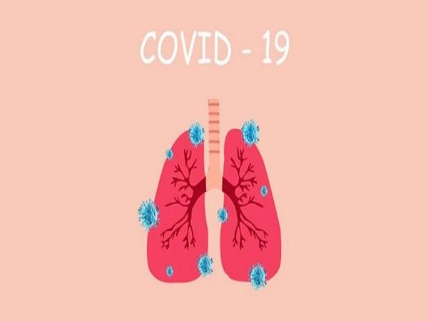 Các biến chứng của covid-19 - Ảnh 5