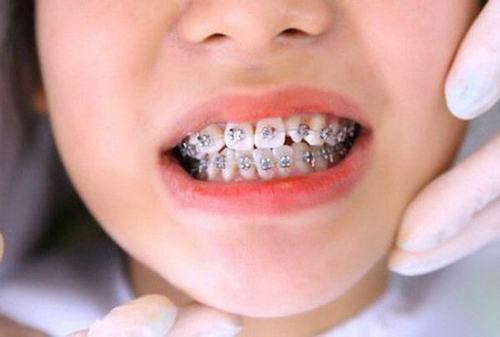 Răng hô là gì? Chi phí niềng răng hô nhẹ là bao nhiêu?