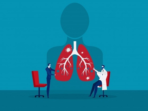 Covid-19 và phổi: Các trường hợp nghiêm trọng - Ảnh 4